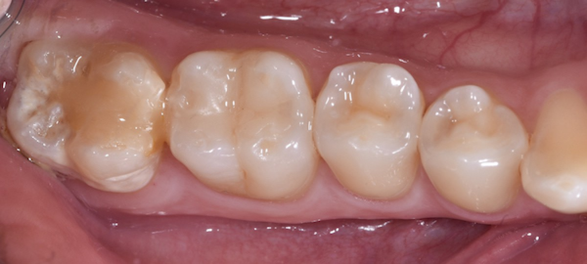 Figs. 1, 2 Frontal view of the smile and the occlusion. Note the unaesthetic appearance due to the deep bite and anterior diastema