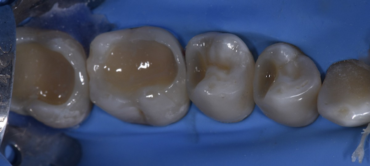 Figs. 10: Frontal view of the smile at completion of the treatment. Note the dramatic positive change in all aesthetic standards of the smile