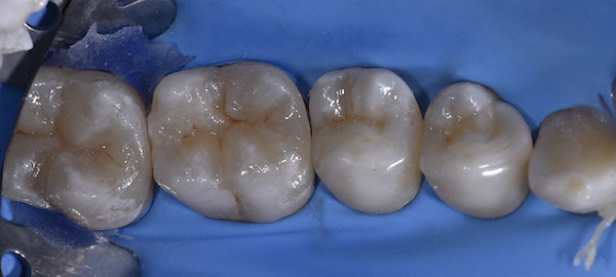 Figs. 12-16 Final photos of the teeth after treatment with 3-3 fixed retainers bonded on upper and lower anterior teeth