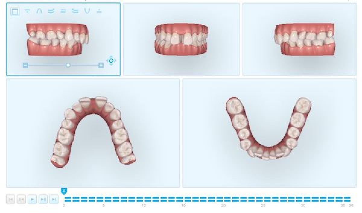 Figs. 7, 8 3D digital planning of the treatment. Movement was divided to 36 aligners (one week each