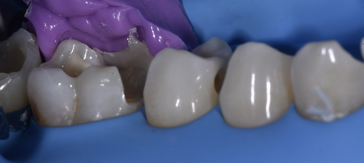Fig. 9 Patient with the aligners during the treatment. Note the perfect fit of the aligner's edges to the teeth which ensure that all movements that were planned actually happened.